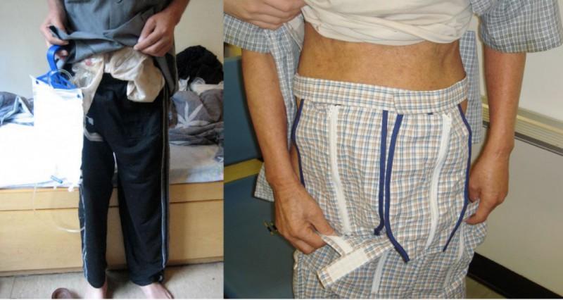 伯伯身上有雙造口袋與尿袋;(右圖)Frency與同事幫伯伯做的睡褲。