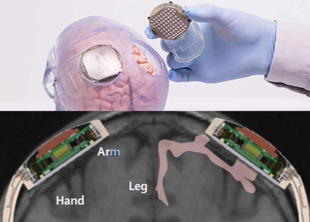 感應器安裝在顱骨及大腦之間
