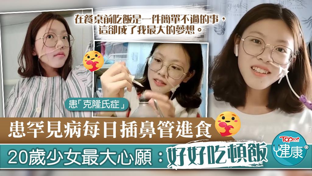 【生命鬥士】患罕見病每日插鼻管進食 20歲少女最大心願:好好吃頓飯