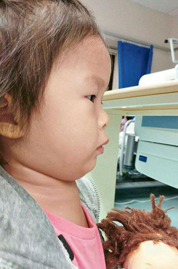Haley兩歲多時,頸項突然腫脹,意味FOP正式發病。