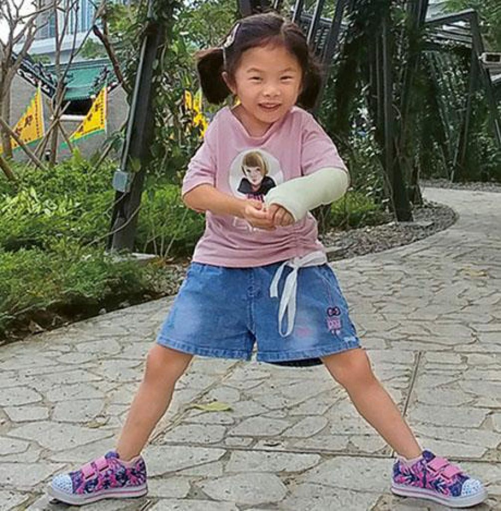 Haley 5歲多時跌傷左手,康復後,患處新增了一塊骨頭。