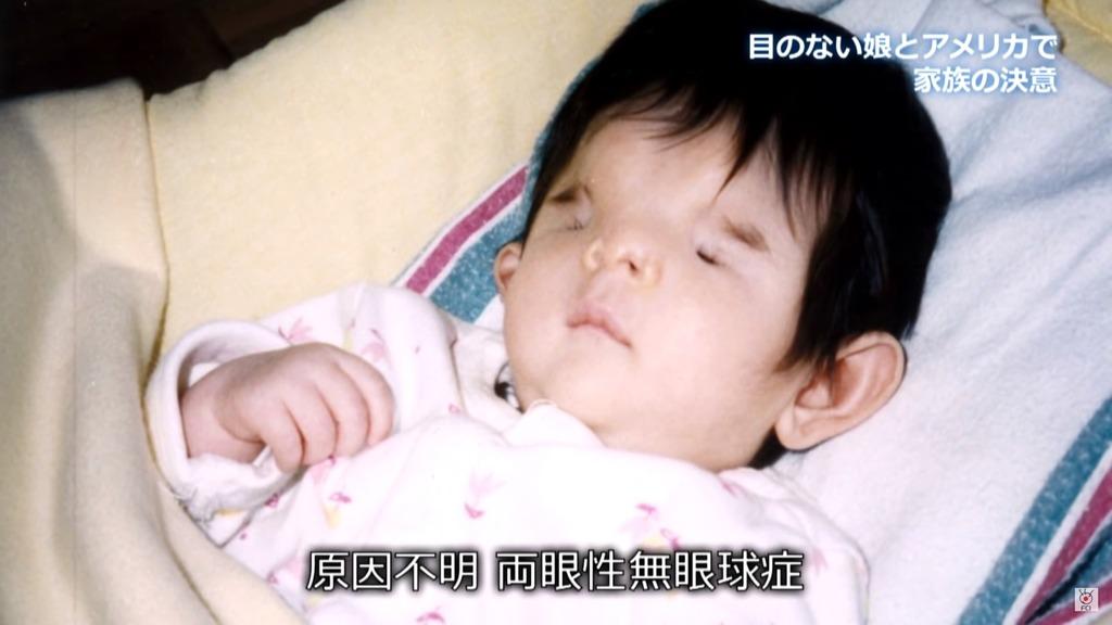 千璃證實患上罕見病「無眼球症」,每12萬人中只有一例。