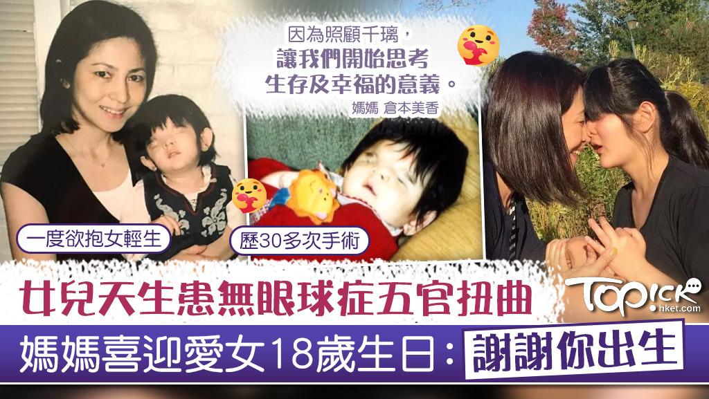 【生命鬥士】女兒天生患無眼球症五官扭曲 媽媽喜迎愛女18歲生日:謝謝你出生