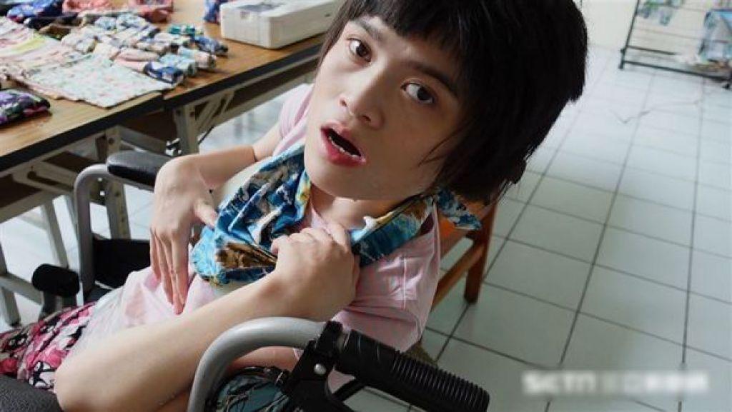 24歲錢虹安患天使症候群。