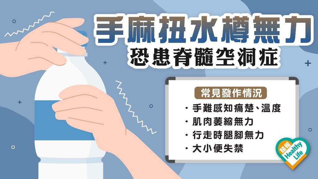 罕見病 │ 手部麻木扭水樽都無力 恐患脊髓空洞症 嚴重可致失禁