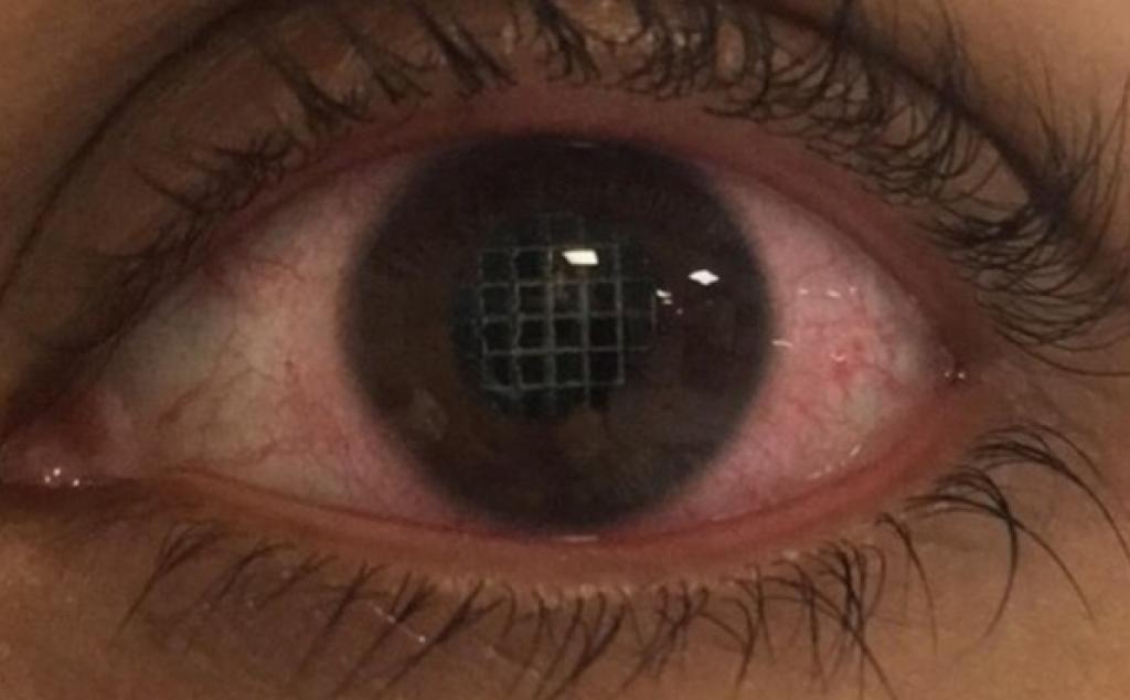 奧利維亞完成手術後的眼睛。